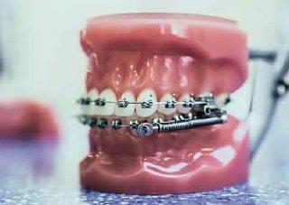 Zahnspange außenbogen Hosenträger mit
